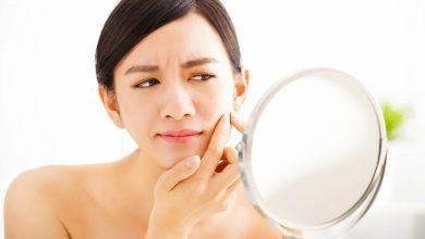 تصویر از درمان جوش صورت با روش های طبیعی