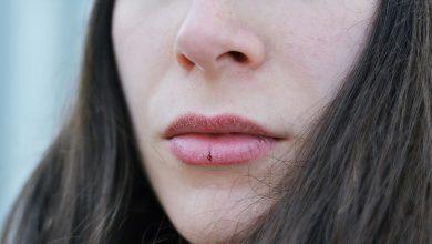 تصویر از علت، درمان و جلوگیری از خشکی و ترک لب