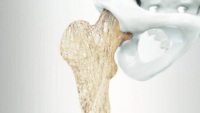 تصویر از پوکی استخوان | علل پوکی استخوان | درمان پوکی استخوان