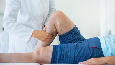 تصویر از واریس؛ علائم و نشانه های واریس، عوامل خطر و درمان خانگی واریس