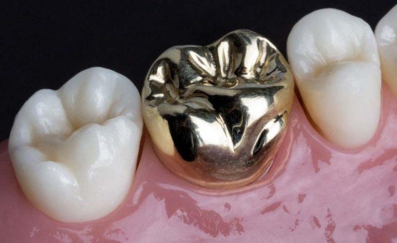 روکش دندان فلزی