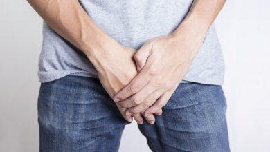 تصویر از کیست بیضه یا اسپرماتوسل چیست؟ | درمان سنتی کیست بیضه