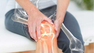 تصویر از پوکی استخوان؛ علائم و نشانه ها، پیشگیری و درمان پوکی استخوان
