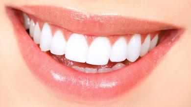 تصویر از همه چیز درباره جرم گیری دندان