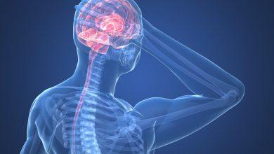 تصویر از علت درد پشت سر | دلایل، پیشگیری و درمان