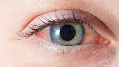 تصویر از 8 علت قرمزی چشم و روش های درمان قرمزی چشم