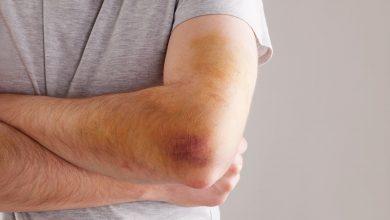 تصویر از علت کبودی بدن