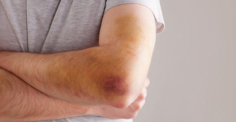 علت کبودی بدن