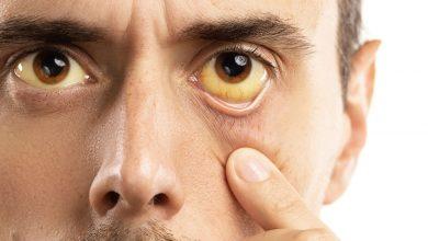 تصویر از علت زردی چشم