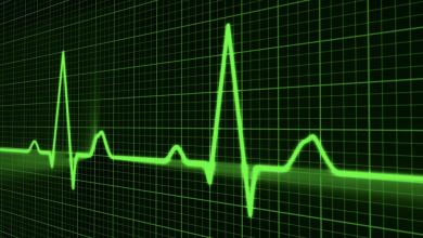 تصویر از علل تپش قلب و درمان آن