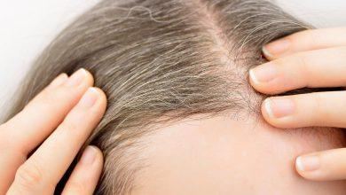 تصویر از علل و درمان سفید یا خاکستری شدن موی کودک