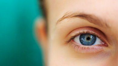 تصویر از افتادگی پلک | علل، تشخیص و درمان افتادگی پلک