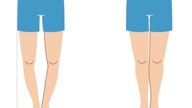 تصویر از پای پرانتزی | علل، علائم، تشخیص و درمان پای پرانتزی