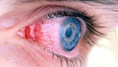تصویر از درمان برق زدگی چشم به علت جوشکاری
