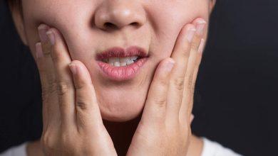 حساس شدن دندان