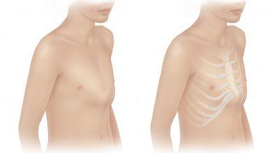 تصویر از علل، علائم و درمان بیماری سینه برجسته (پکتوس کاریناتوم)