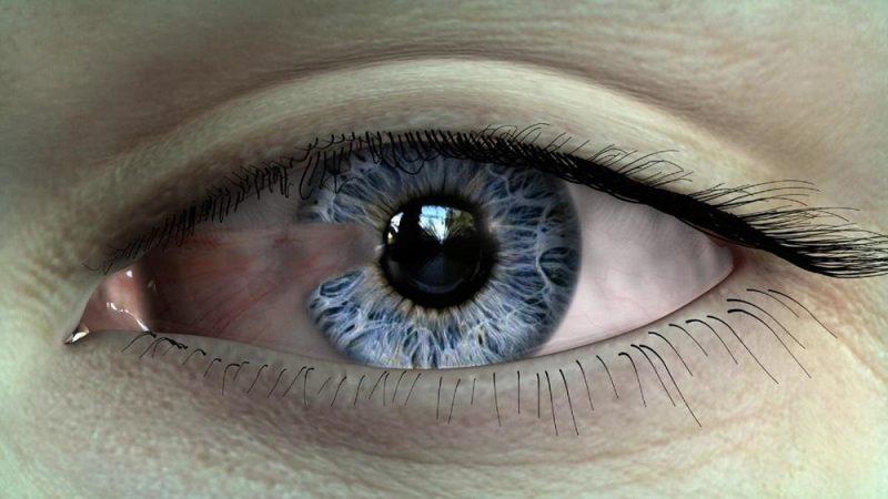 ناخنک (زائده) چشمی