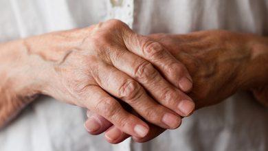 تصویر از آرتریت یا التهاب مفصل؛ علت، علائم و درمان های گیاهی و خانگی آن