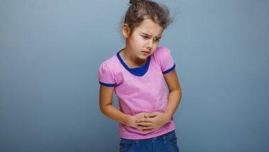 صرع شکمی در کودکان