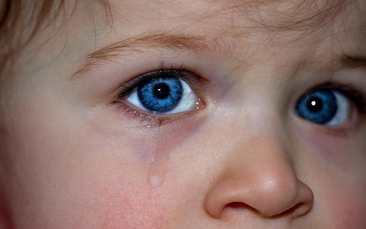 کبودی زیر چشم کودک