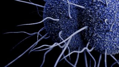 تصویر از بیماری سوزاک؛ علائم، تشخیص، عوارض و درمان خانگی آن