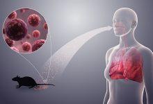 تصویر از بیماری هانتا ویروس؛ علائم، تشخیص و درمان بیماری هانتا