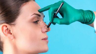 رینوپلاستی بینی بدون جراحی