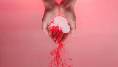 سقط ناخواسته جنین