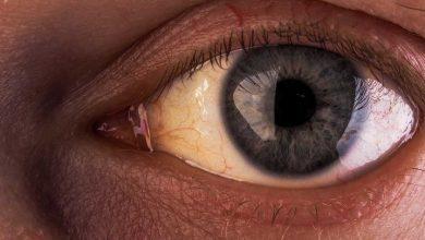 سندرم ژیلبرت یا زردی چشم