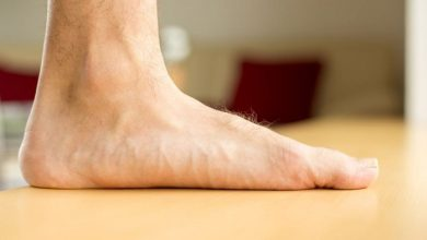 کف پای صاف چیست
