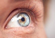 تصویر از مگس پران چشم چیست؟ آیا مگس پران چشم درمان دارد؟