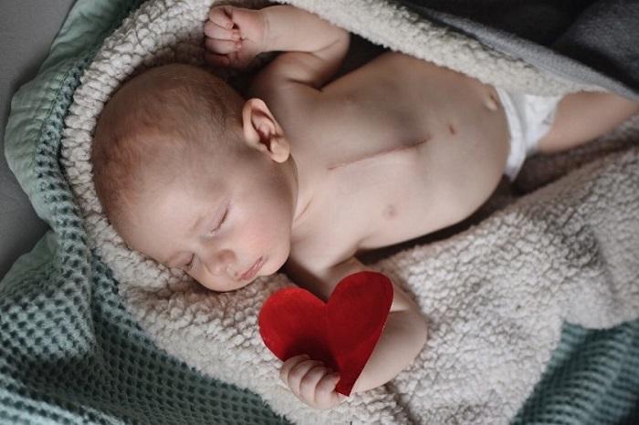 سوراخ قلب نوزاد