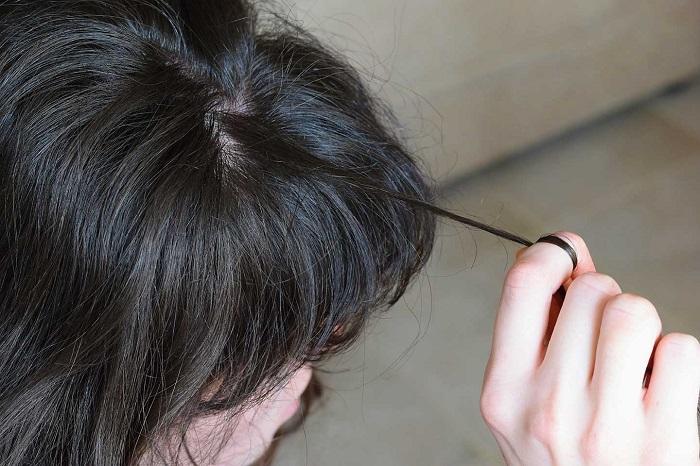 کندن موی سر