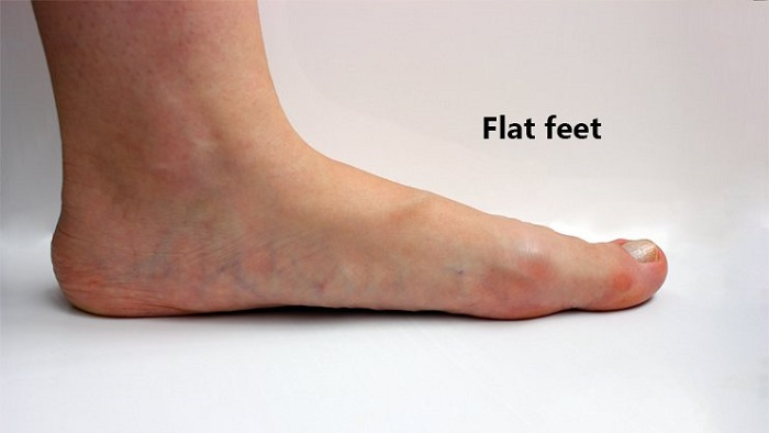 کف پای صاف