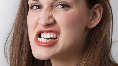 تصویر از دندانقروچه؛ علل، علائم، عوارض و درمان دندانقروچه