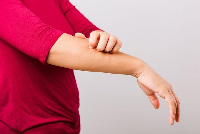 خارش پوست نشانه چه بیماری هایی است؟
