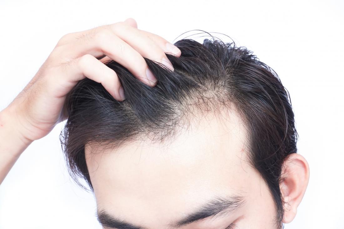ریزش موی شقیقه ها
