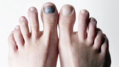 کبودی ناخن های پا