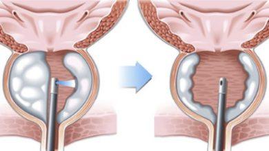 روش درمان پروستات با لیزر درمانی
